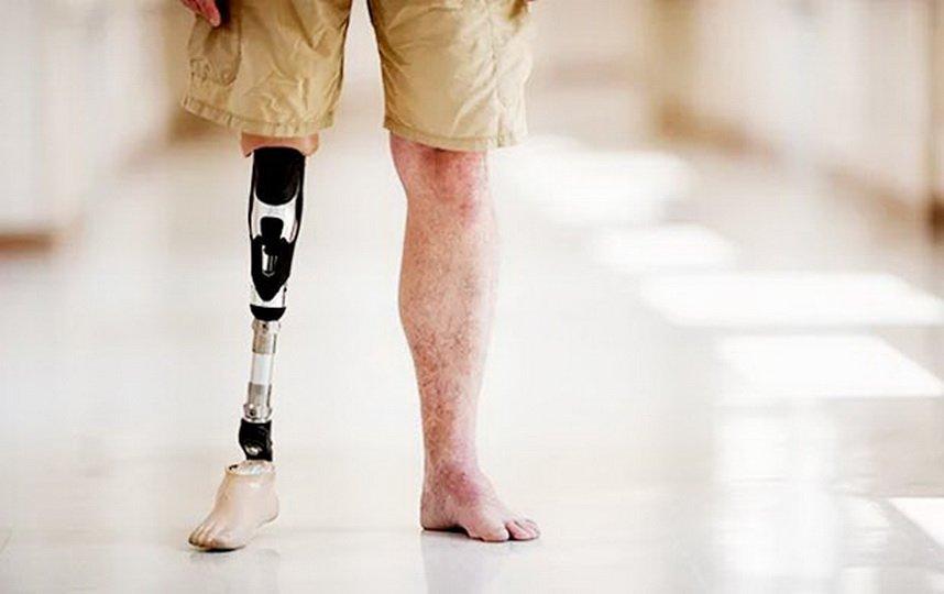 Реабилитации после ампутации ноги выше колена