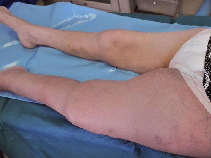 Острый илеофеморальный тромбоз ног