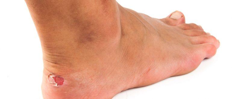 Что делать если пробил ногу ржавым гвоздем