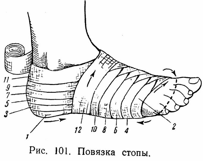 Виды повязок на нижнюю конечность