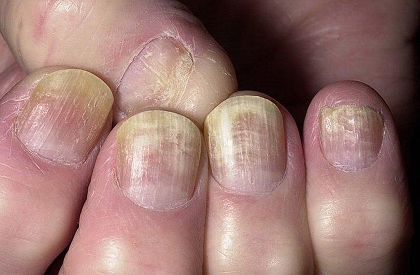 """""""Экзодерил"""" в борьбе с грибком ногтей"""