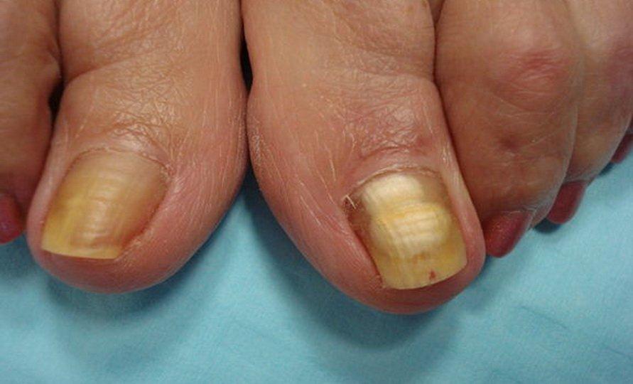 Применение нашатырного спирта при лечении грибка ногтей