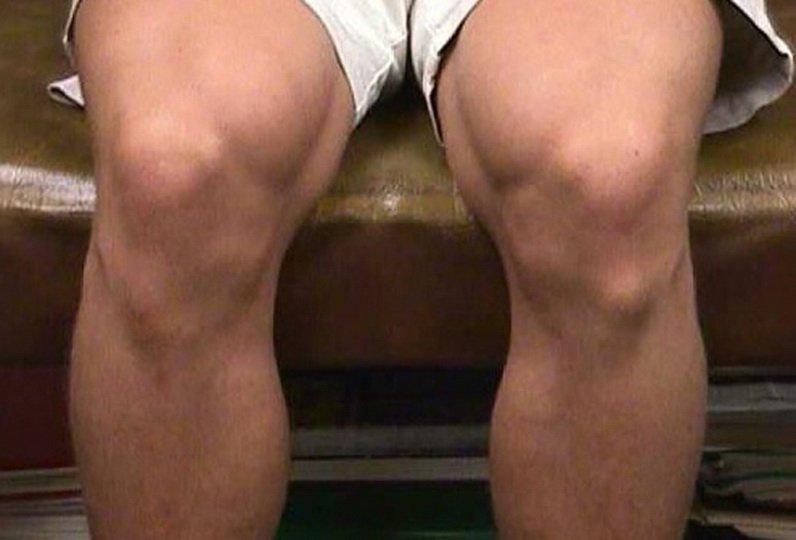 Уплотнения на ноге в районе колена