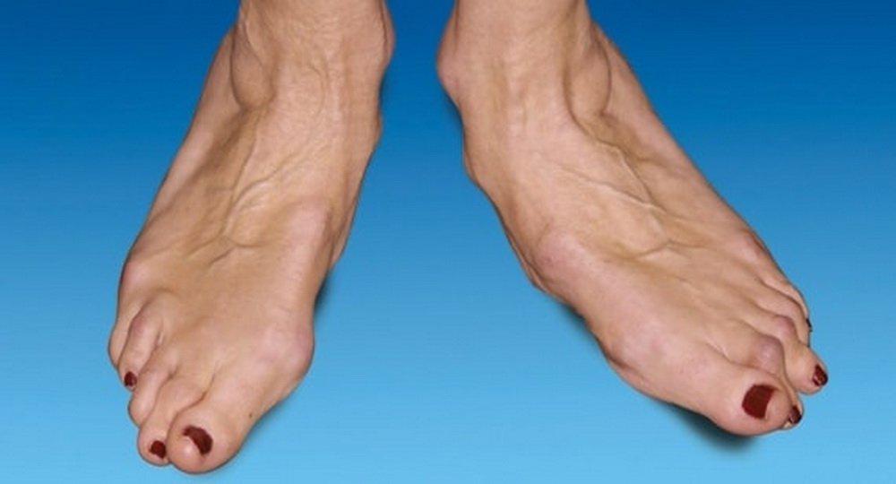 Современная концепция лечения ревматоидного артрита