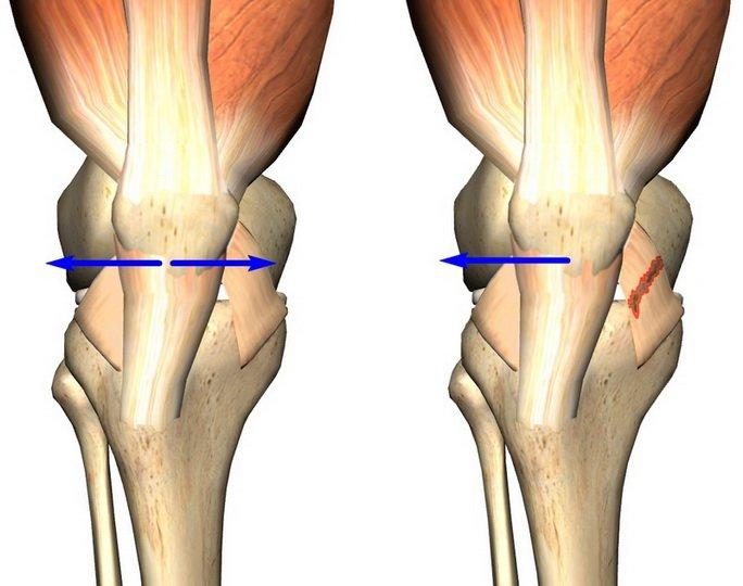 Структура и патологии пояса нижних конечностей