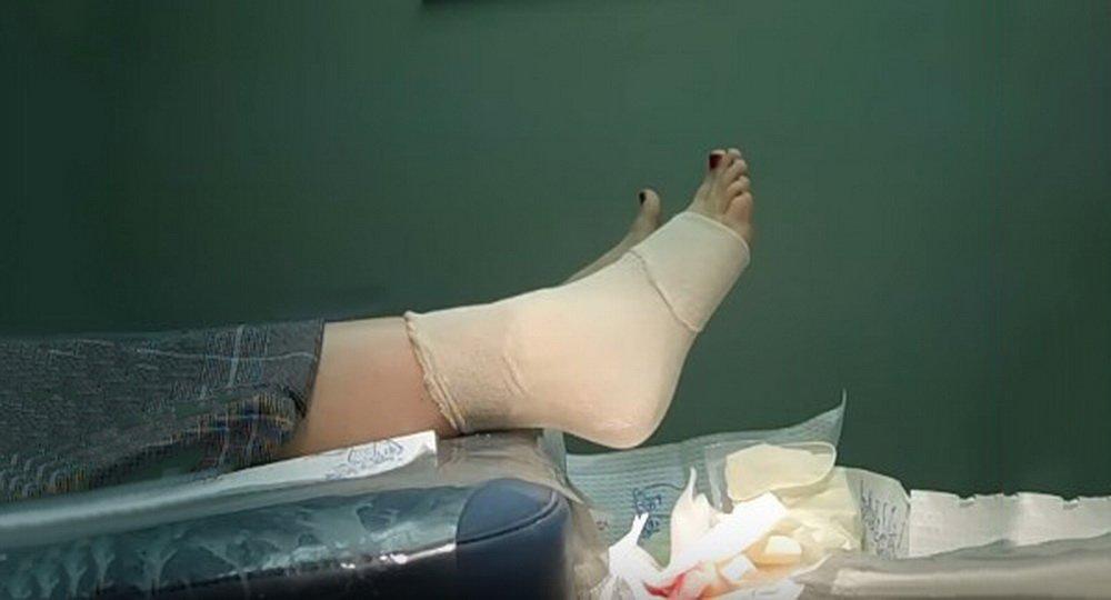 Лечение прокола ноги ржавым гвоздем