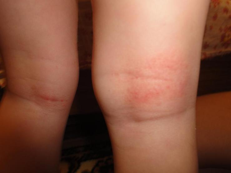 Причины боли под коленом сзади