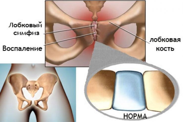 Почему при беременности болят кости таза?