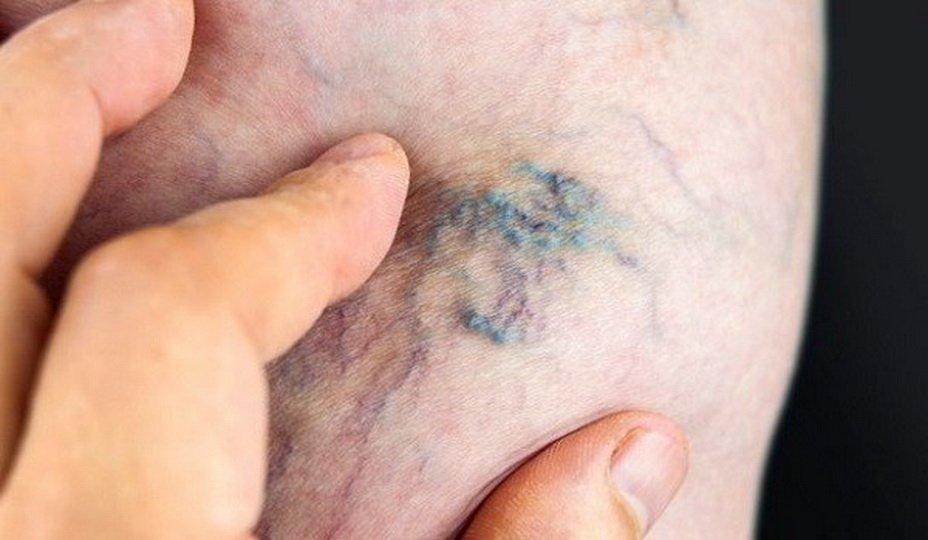 Лечение и профилактика постоперационного тромбофлебита
