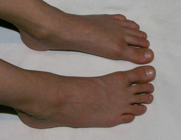 Отек большого пальца на ноге