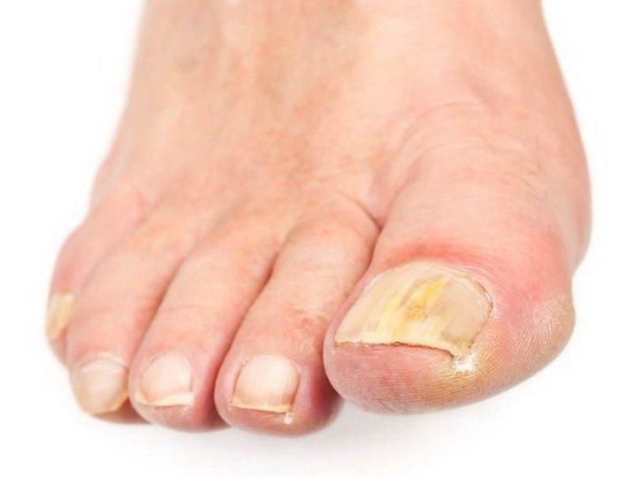 Схема терапии грибка ногтей на ногах
