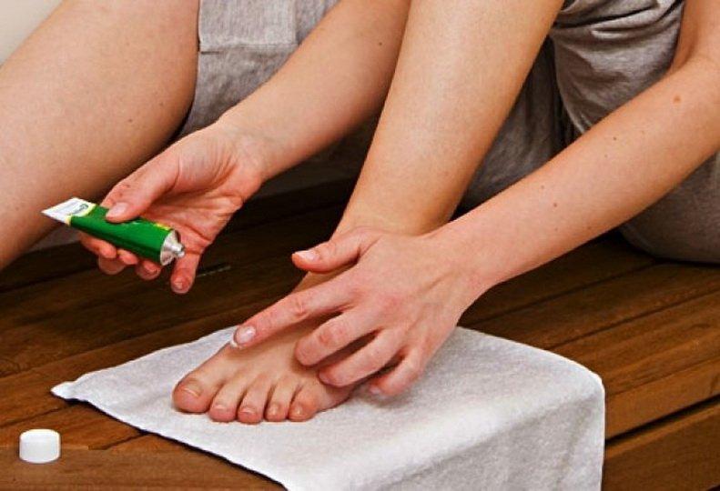 Лечение грибка ногтей Йодинолом