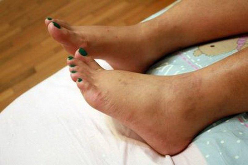 Причины отеков ног в области щиколоток