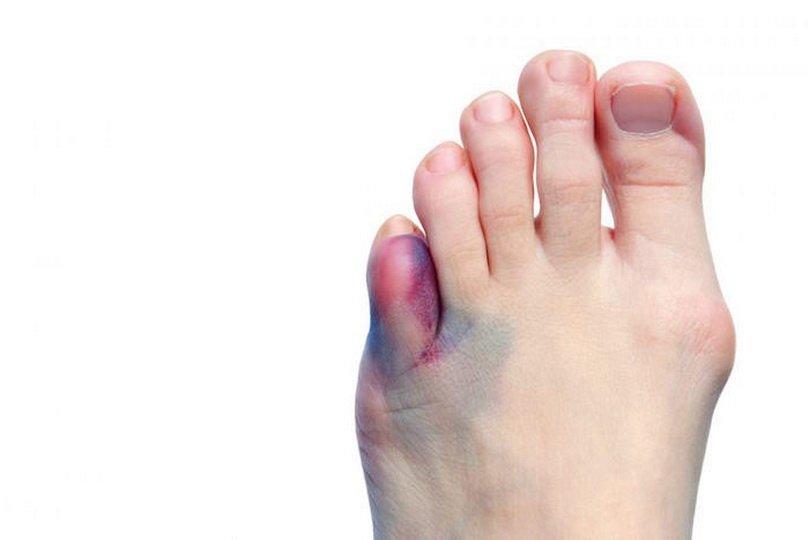 Что делать, если палец на ноге опух и болит?