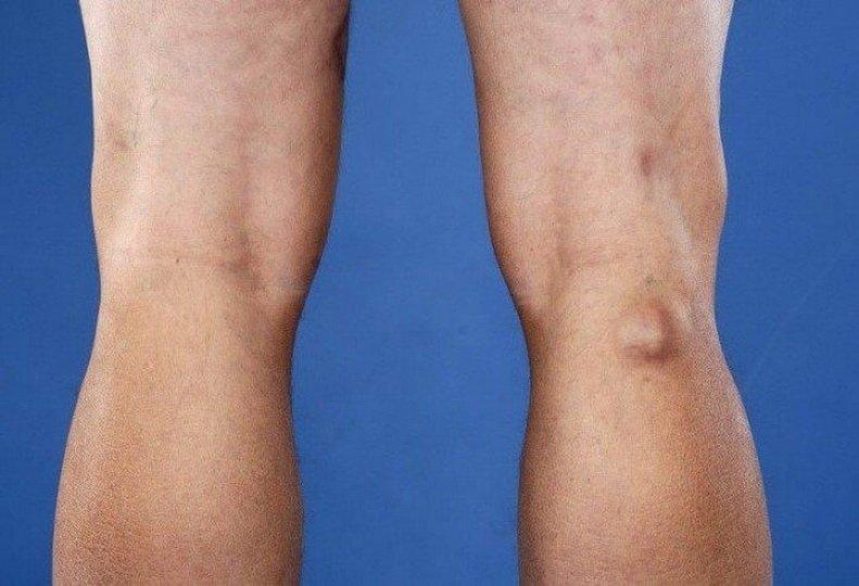 Локализация и причины воспаления лимфоузлов на ногах