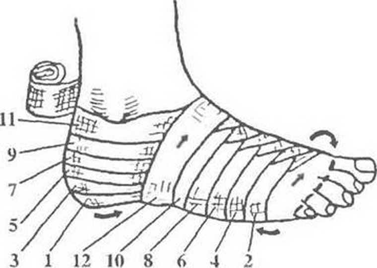 Виды повязок на голеностопный сустав