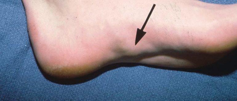 Шишка под кожей на ноге не болит