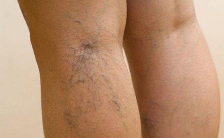 Причины и лечение болей в венах на ногах