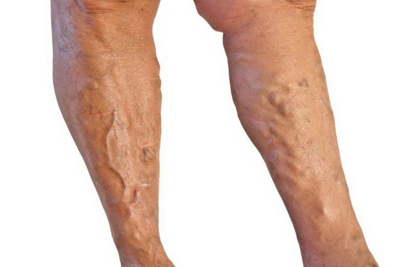 Уплотнение красного цвета на ноге