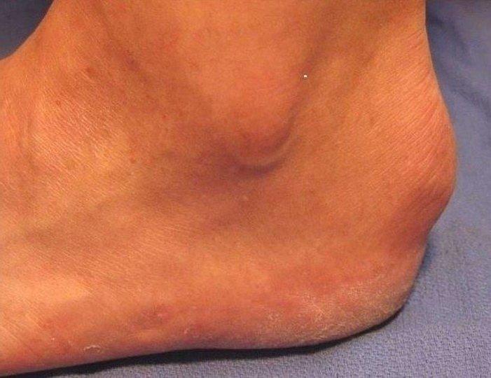 Виды и лечение шишек на пятках