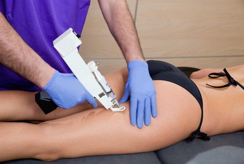 Эффективность мезотерапии против целлюлита