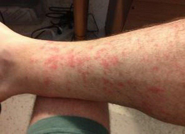 Причины и лечение зуда ног ниже колен