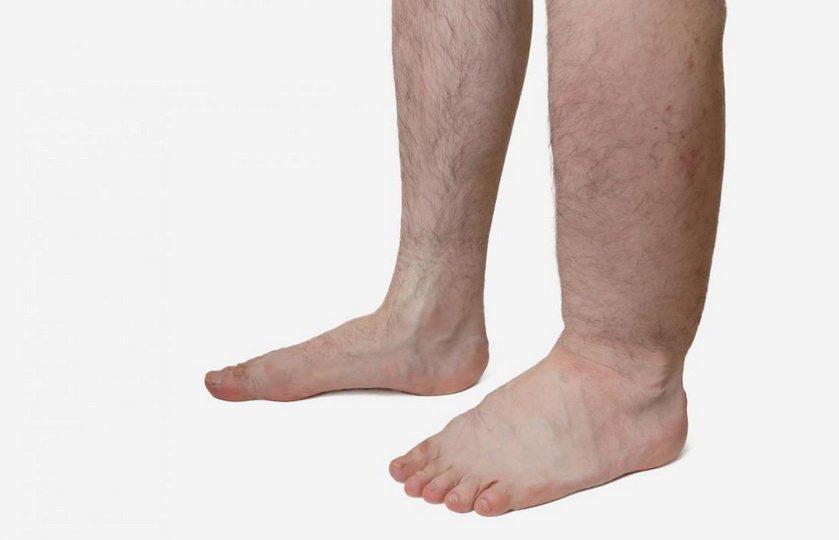 Как убрать отечность ног в домашних условиях?