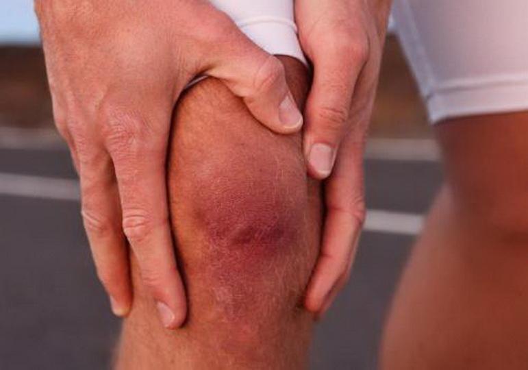 Почему болит и опухает колено без механических повреждений?