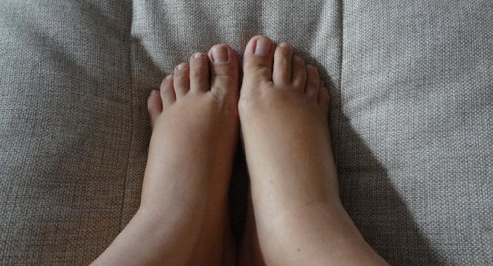 Почему отекают ноги у пожилых людей и как лечить отеки
