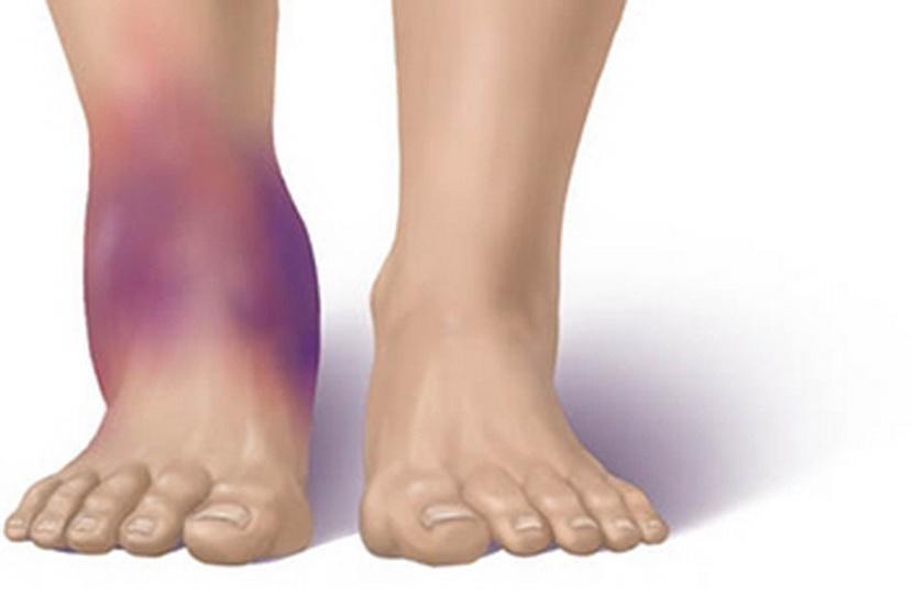 Отекают ноги в щиколотках и болят: полный обзор причин, лечение