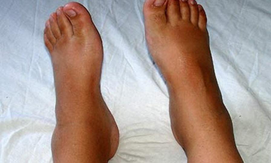 Причины отечности нижних конечностей и способы лечения после 50