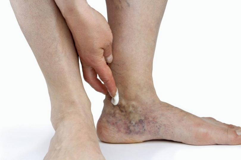Гимнастика и спорт при тромбофлебите нижних конечностей