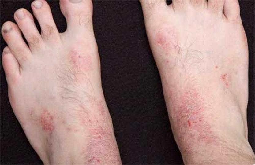 Чешутся лодыжки: подробный обзор причин, почему чешутся ноги в районе и выше щиколоток