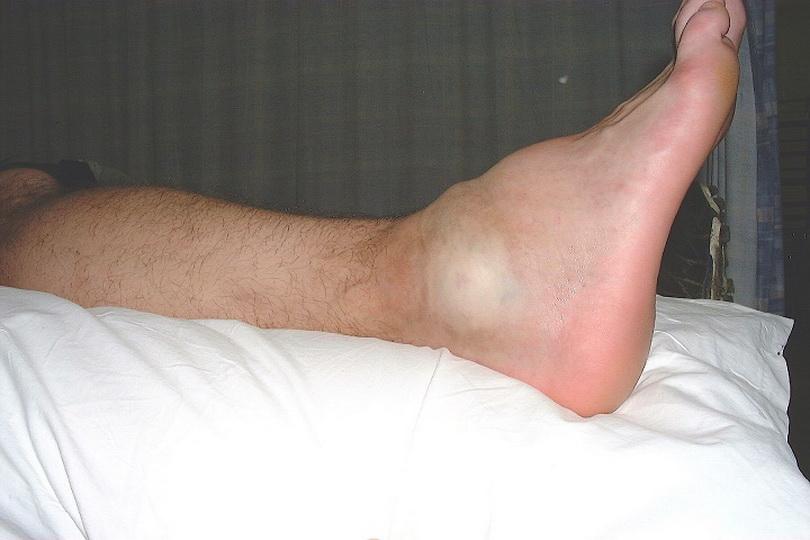 Подвернула ногу опухла косточка что делать