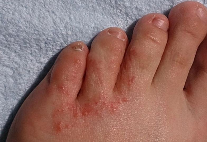 Чем лечить зуд между пальцами ног и покраснение кожи?