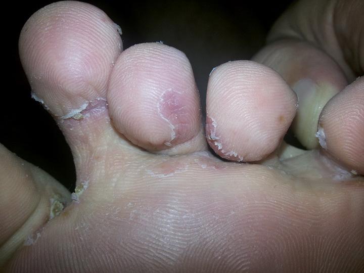 Способы лечения межпальцевого грибка ног в домашних условиях