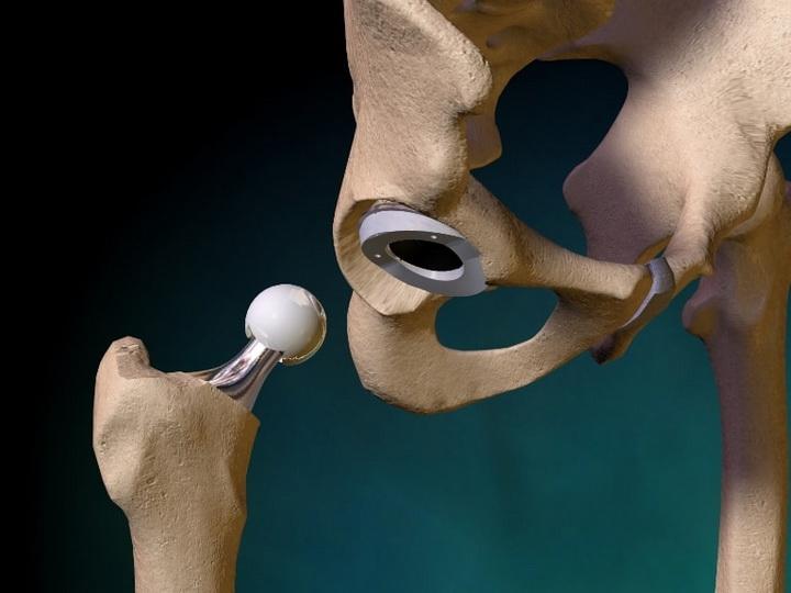 признаки осложнения после эндопротезирования