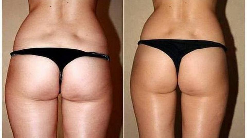 Исчезнет ли целлюлит после похудения? Частые ошибки и профилактика
