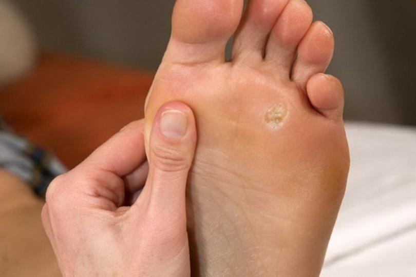 Как вывести шипицу на ноге в домашних условиях?