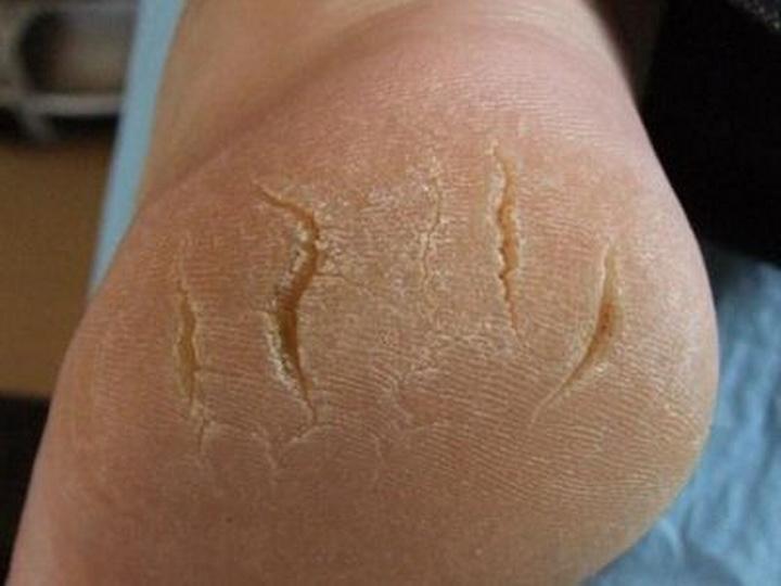 Обзор эффективных способов лечения трещин на пятках, 10 причин появления трещин