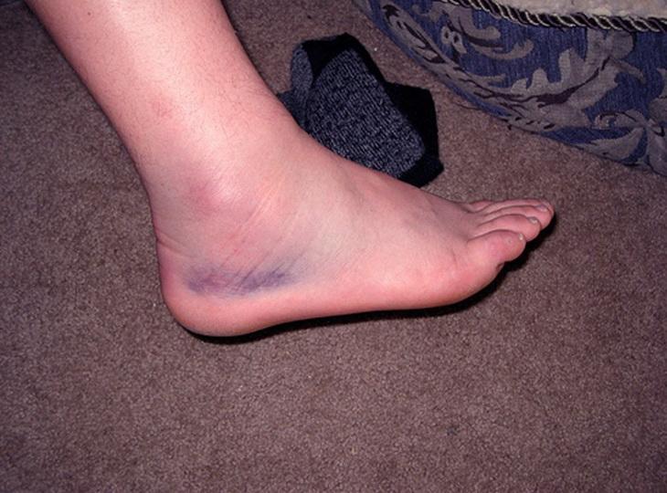 Что делать, если отекают ступни, лечение отека после травмы