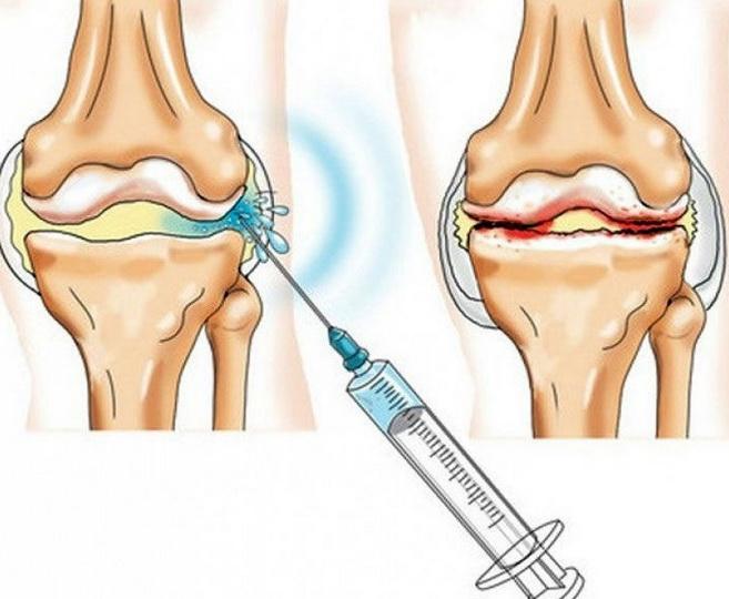 Способы лечения деформирующего артроза колена 3 стадии