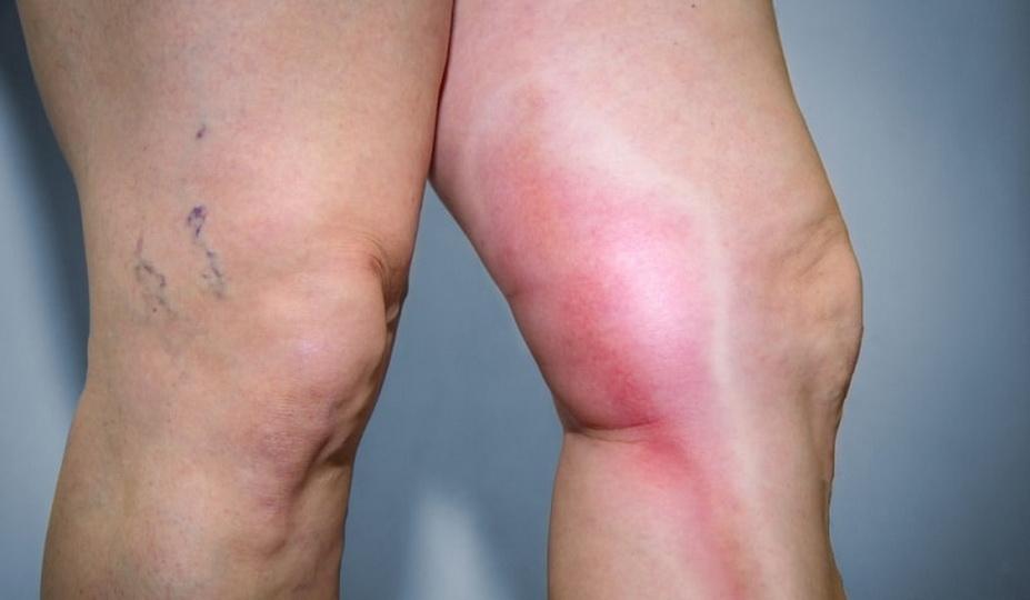 Что такое тромбоэмболия ног, чем она опасна, симптомы и лечение