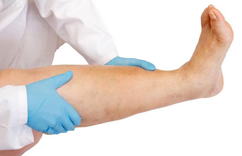 Отеки ног при варикозе, эффективное лечение в домашних условиях