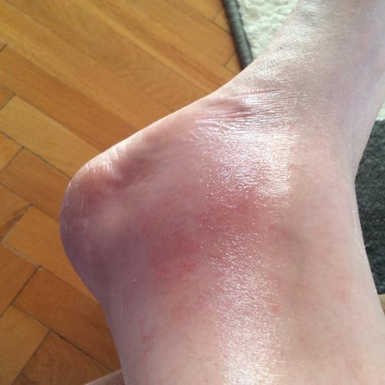 Как лечить сильный ушиб ноги с гематомой, первая помощь