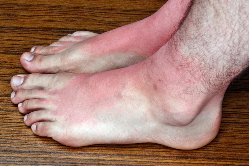 Почему опухают ноги в районе стопы у женщин, лечение отеков