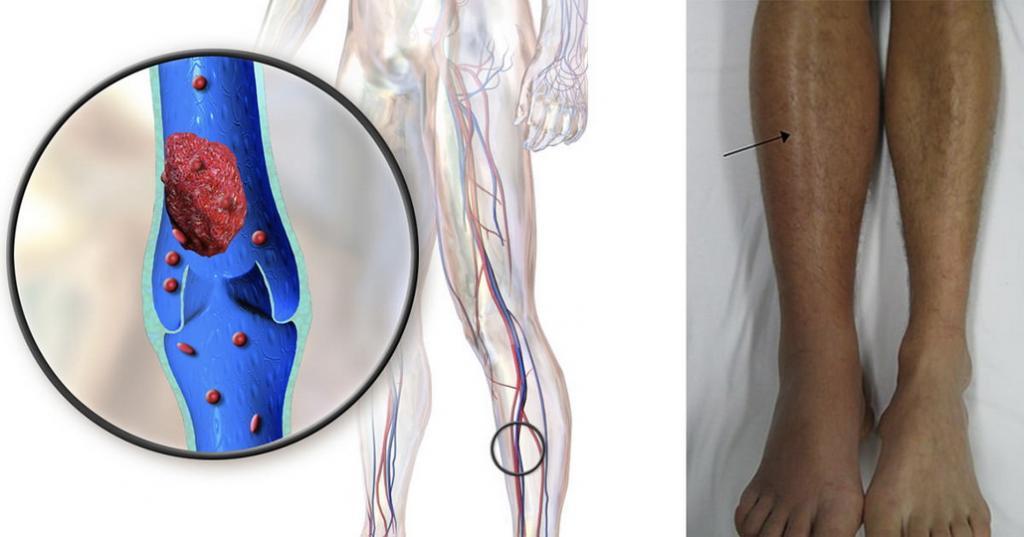 Чем опасен тромбофлебит глубоких вен нижних конечностей для беременных