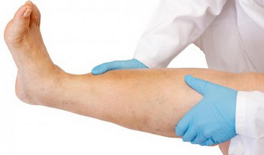 Причины по которым ноют ноги ниже колен, народные средства для лечения