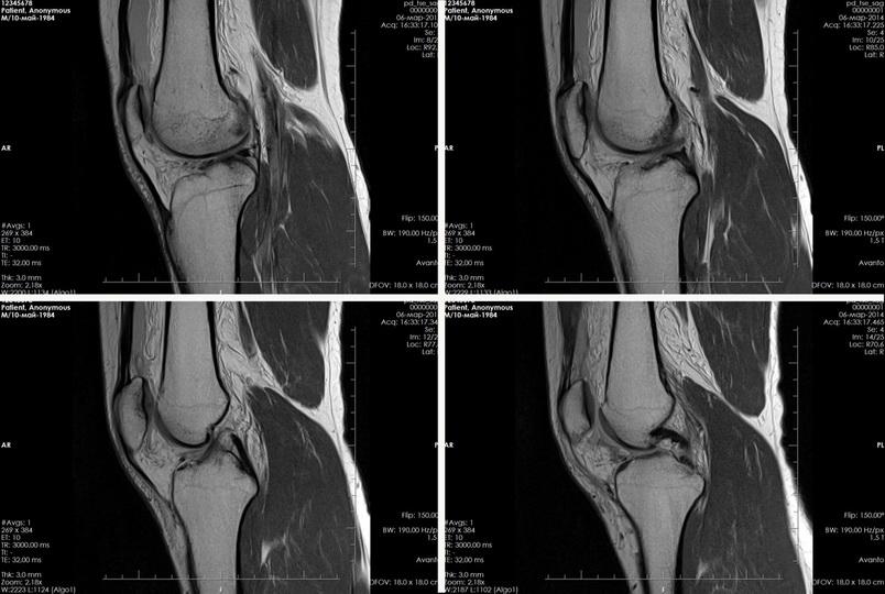 Что лучше МРТ или КТ коленного сустава и в каких ситуациях