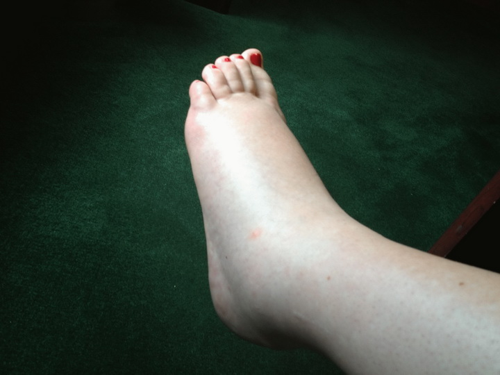 Опухают ноги ниже колен: причины отеков и лечение в домашних условиях